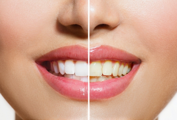 Leke çıkarıcı diş macunu kalıcı lekelere yol açabilir