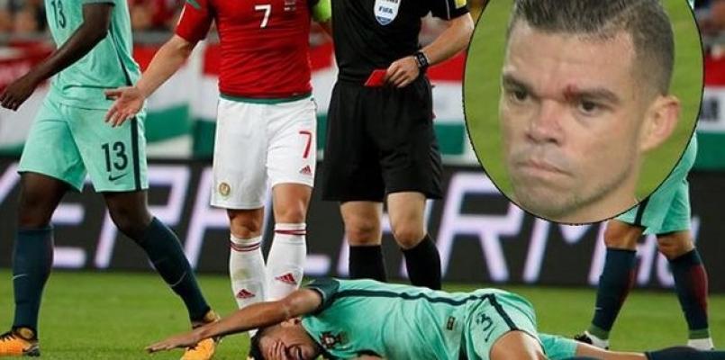 Pepe'den özür dilettiler!
