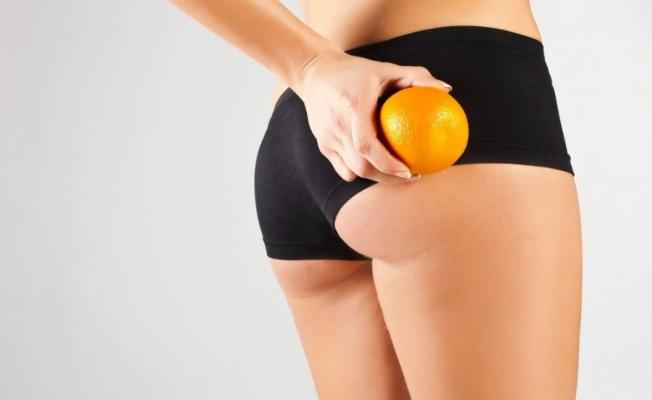 Selülit Tedavisi İle Portakal Kabuğu Görünümünden Kurtulmak Hayal Değil