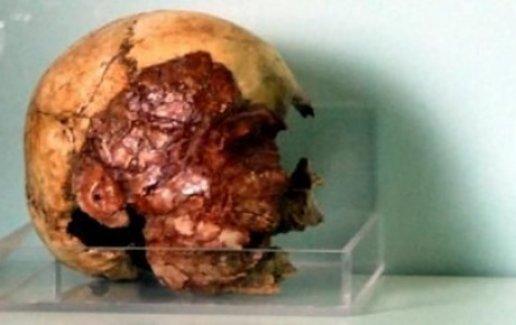 7 bin 200 yıllık kafatasına büyük ilgi