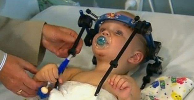 Başı vücudundan kopan bebek hayata döndürüldü