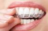 Diş Gıcırdatma  Rahatsız Ediyor