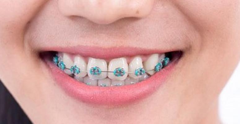 Diş Teli Tedavisi Alanların Dikkatine !...