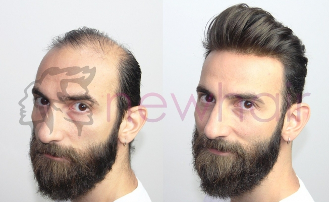 New Hair İle Protez Saç Keyfi