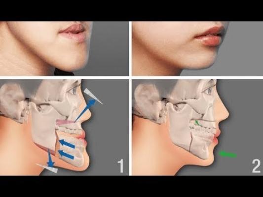 Ortognatik (Çene) Cerrahi Nedir?