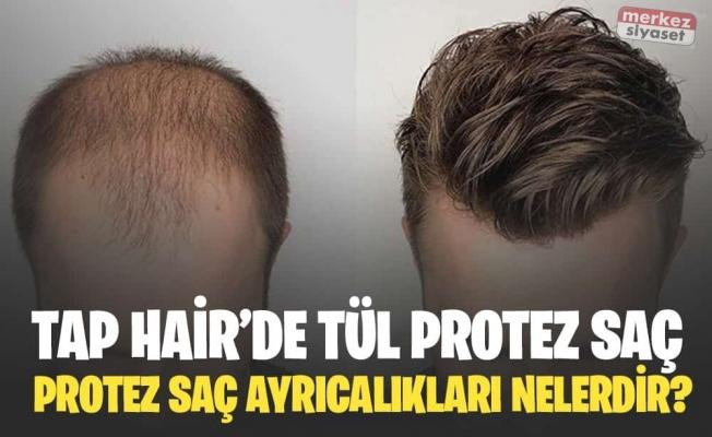 Saç Protezini Kimler Kullanabilir?