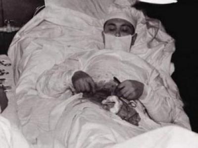 Dünyada Bir İlk Kendi Kendini Ameliyat Etti