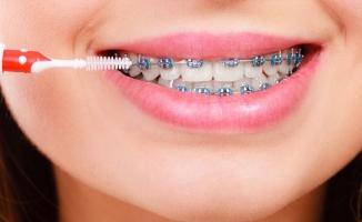Diş Teli Her Yerde Yapılmaz